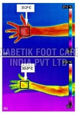 IR Thermal Imager Device