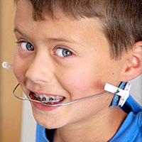 Orthodontics Appliance Treatment