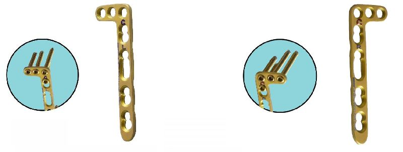 2.7mm Locking Distal Dorsal Radius L Plate
