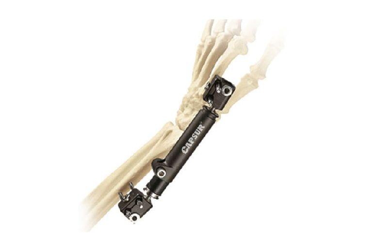 Dynamic Wrist Fixator