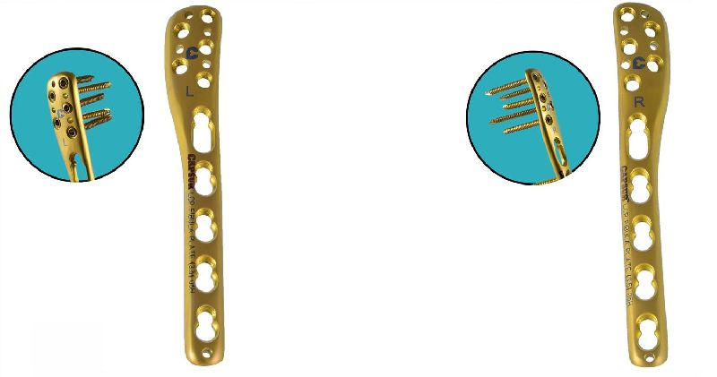 LCP Distal Fibula Plates