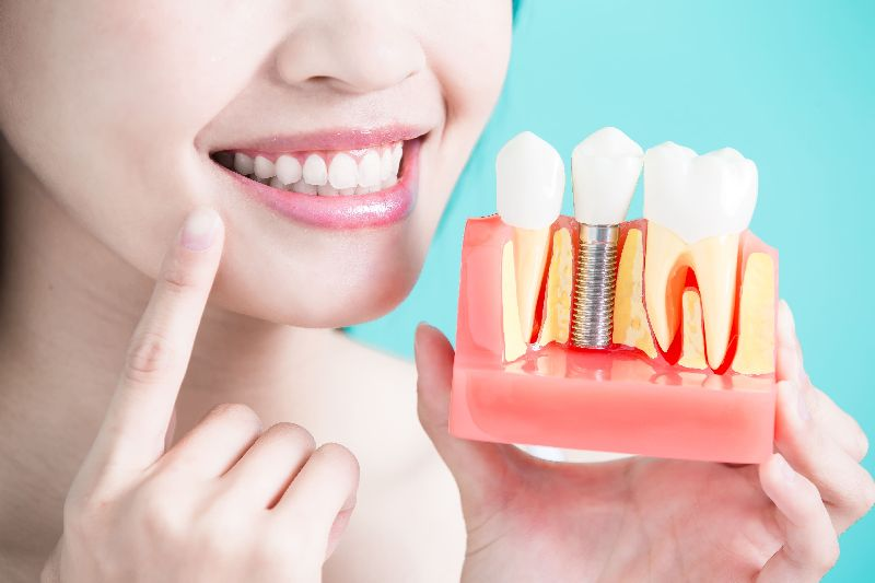 Dental Implant Fixing Services