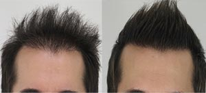 Non Surgical Hair Transplant