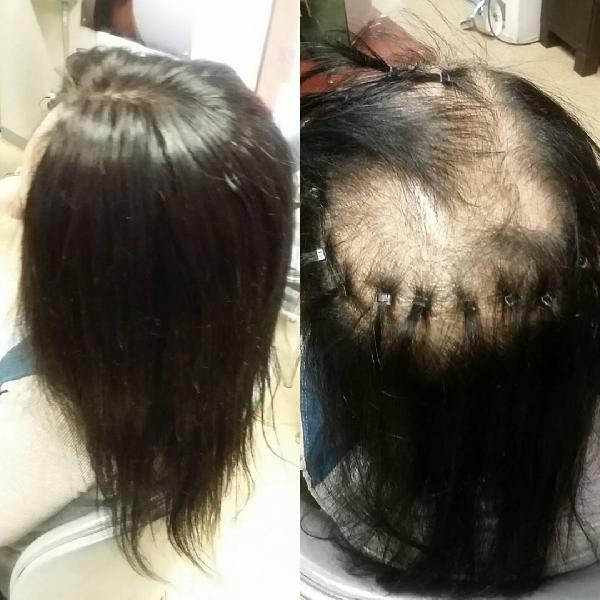 Ladies Cancer Hair Wigs