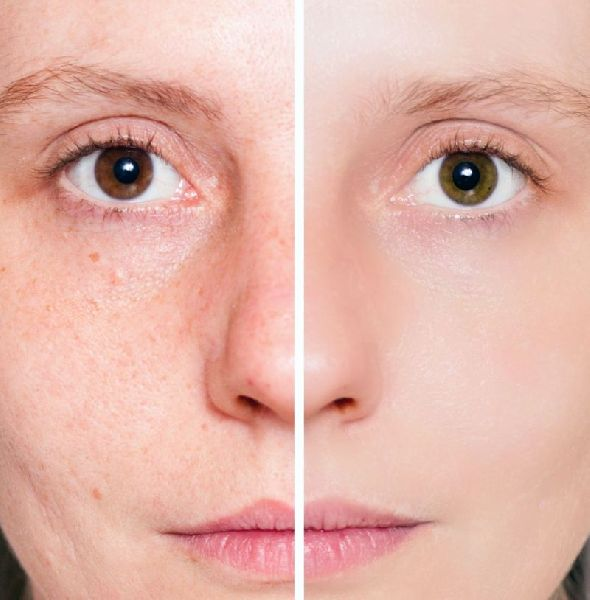 PRP Skin Therapy