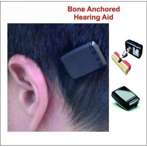 Bone Anchored Hearing Aids