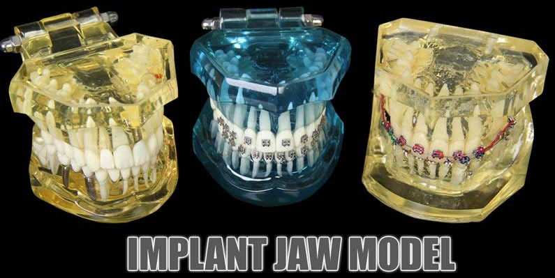 Implant Jaw Model