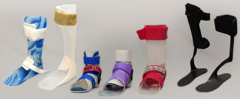 Paediatric Splints