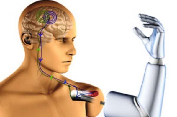 Robotic Hand Prosthesis