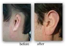 Silicone Ear Prosthesis