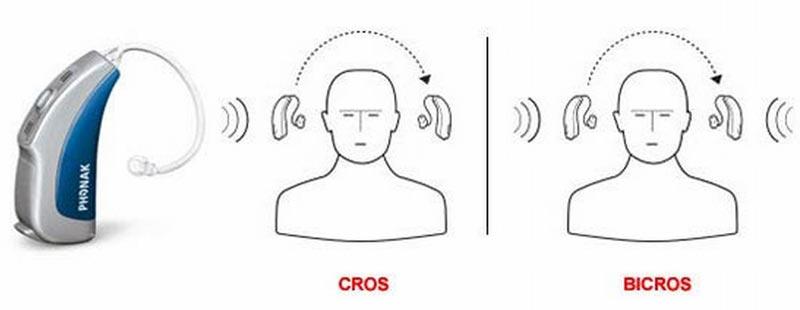 Cros BTE Hearing Aid