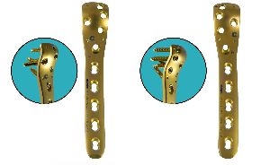 Locking Proximal Femoral Plate