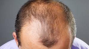 alopecia Hair Wig services
