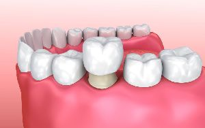 Dental Crown Fixing Services