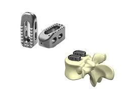 18.0mm Intervertebral Spine Cage