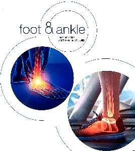 Foot Ankle Plate