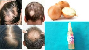 Hair Regrowth Treatment Non Invasive Therapy