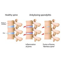 Yoga Treatment for Ankylosing Spondylitis