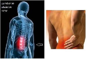 Yoga Treatment for Lumbar Spondylosis 04