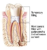 Root Canal Sealing