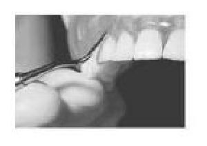Dental Periotome 04